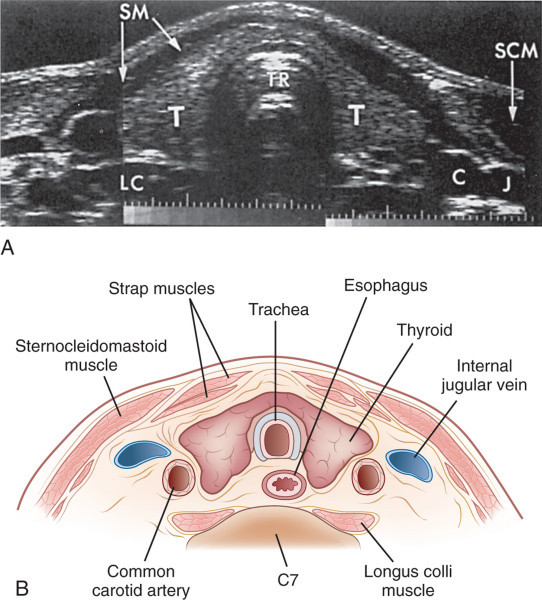 Mobile Thyroid Ultrasound