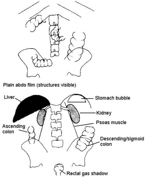 mobile abdominal x